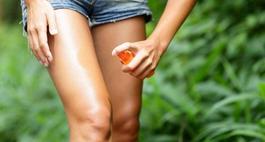 Ukąszenie komara – jak złagodzić ból i swędzenie